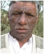 Mohammad Azeem - Aino